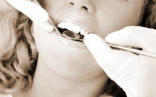 Можно ли получить социальный вычет по расходам на лечение зубов?