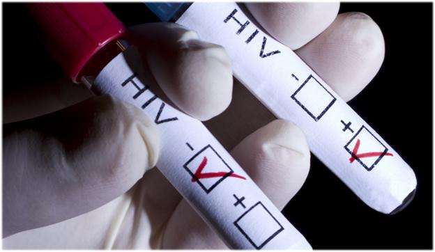 Медицинское обследование на ВИЧ-инфекцию